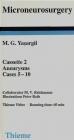 Microneurosurgery Cassette 2 Aneurysms Casa 5-10 M Yasargil