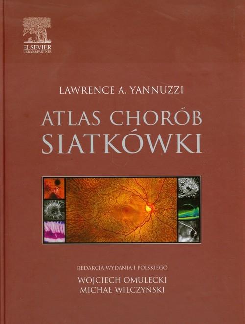 Atlas chorób siatkówki Yannuzzi Lawrence A.
