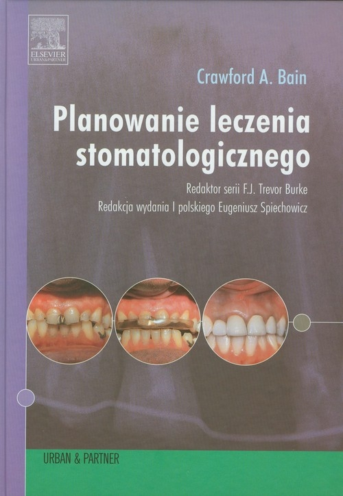 Planowanie leczenia stomatologicznego Bain Crawford A.