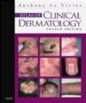 Atlas of Clinical Dermatology Anthony du Vivier, Anthony du Vivier