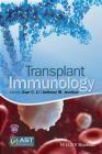 Transplant Immunology Xiang Li, Jevnikar Anthony