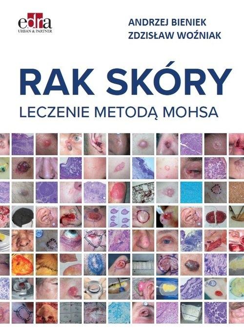 Rak skóry Leczenie metodą Mohsa Bieniek Andrzej, Woźniak Zdzisław