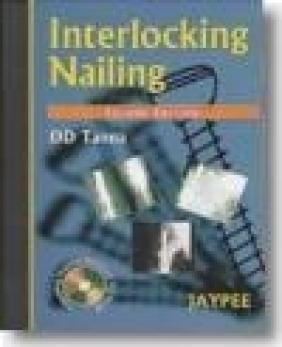 Interlocking Nailing 2E D. D. Tanna
