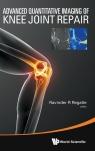 Advanced Quantitative Imaging of Knee Joint Repair