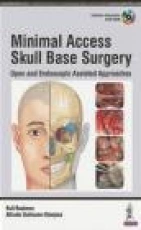Minimal Access Skull Base Surgery Kofi Boahene