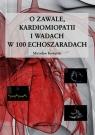 O zawale kardiomiopatii i wadach w 100 echoszaradach Kowalski Mirosław