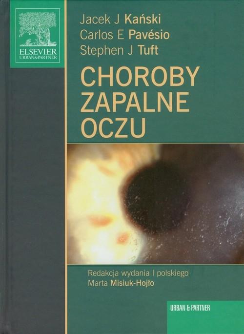 Choroby zapalne oczu Kański Jacek J., Pavesio Carlos E., Tuft Stephen J.