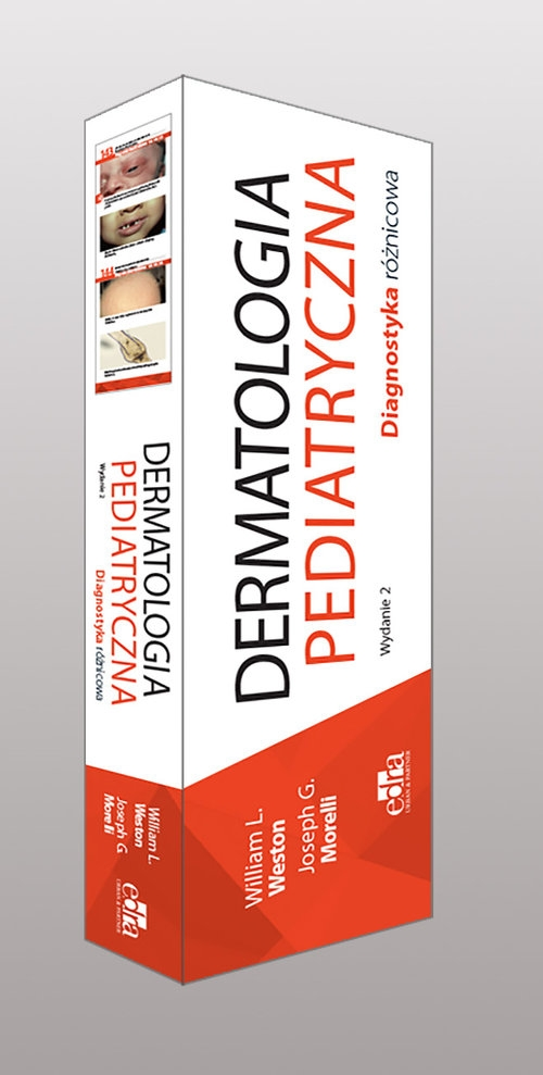 Dermatologia pediatryczna Diagnostyka różnicowa Weston W.L.,  Morelli J.G.