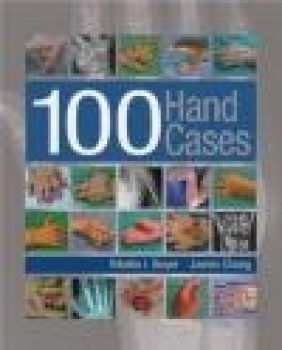 100 Hand Cases James Chang, Martin Boyer