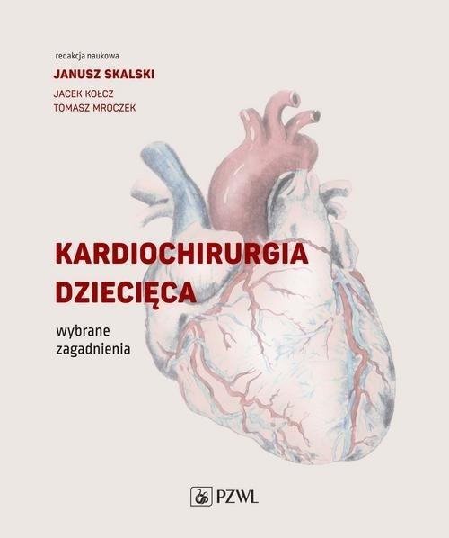 Kardiochirurgia dziecięca Skalski Janusz, Kołcz Jacek