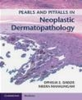 Pearls and Pitfalls in Neoplastic Dermatopathology with Online Access