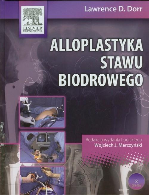 Alloplastyka stawu biodrowego z płytą DVD Dorr Lawrence D.