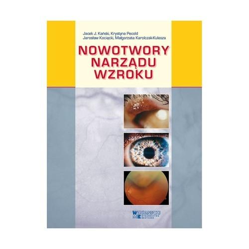 Nowotwory narządu wzroku Kański Jacek J., Pecold Krystyna, Kocięcki Jarosław, Karolczak-Kulesza Małgorzata