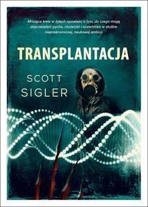Transplantacja Sigler Scott