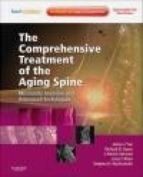 Comprehensive Treatment of Aging Spine