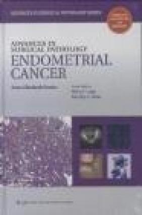 Advances in Surgical Pathology Endometrial Carcinoma Anna Sienko, A Sienko
