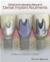 Clinical and Laboratory Manual of Dental Implant Abutments Hamid Shafie