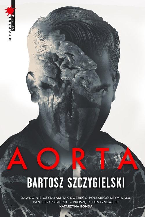 Aorta Szczygielski Bartosz