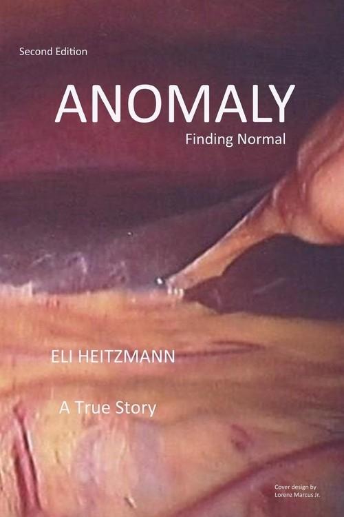 Anomaly Heitzmann Eli