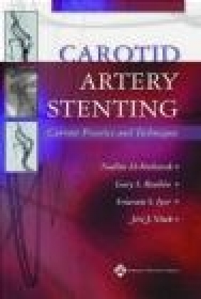 Carotid Artery Stenting Current Practice