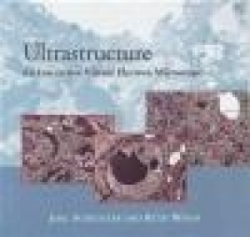 Ultrastructure CD