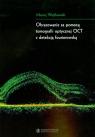 Obrazowanie za pomocą tomografii optycznej OCT z detekcją fourierowską