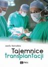 Tajemnice transplantacji Sieradzka Aneta